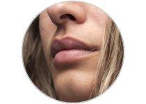 Contours des Lèvres